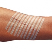 wound_closure_strips