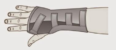 buckle fractures