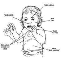 respiratory-distress